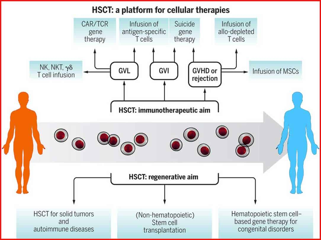 What Is Hsct Hsct Stops Ms Find Out The Facts